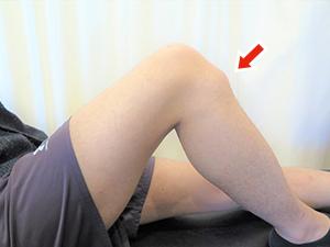 膝の骨の変形